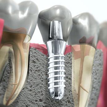 implantologia-01